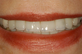 Dentist in Bolingbrook - Smile Makeover After case1