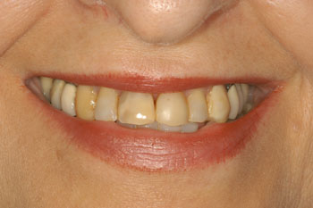 Dentist in Bolingbrook - Smile Makeover Before case1
