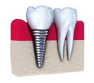 Dental Implants Bolingbrook IL