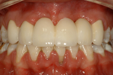 Dentist in Bolingbrook - Smile Makeover After case2