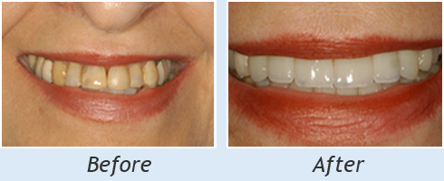Dentist Bolingbrook - Smile Makeover Case1