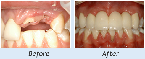 Before and After Smile Gallery Dentist